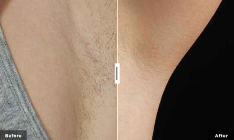 laser hair removal saskatoon