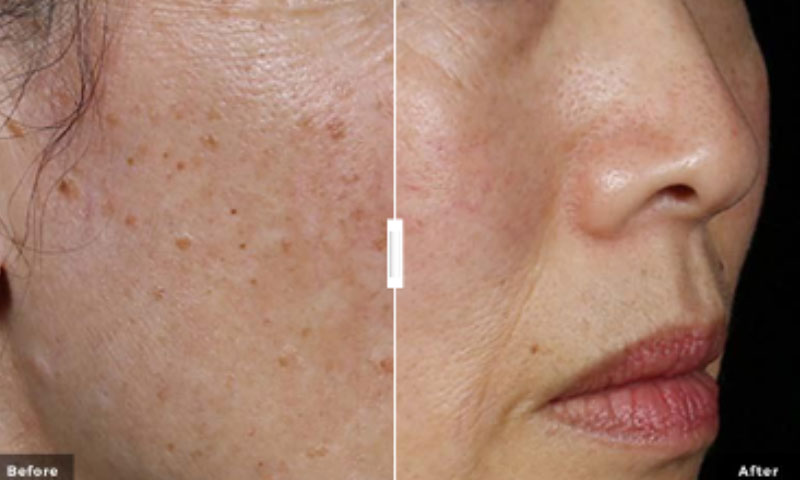 laser pigmentation treatments saskatoon